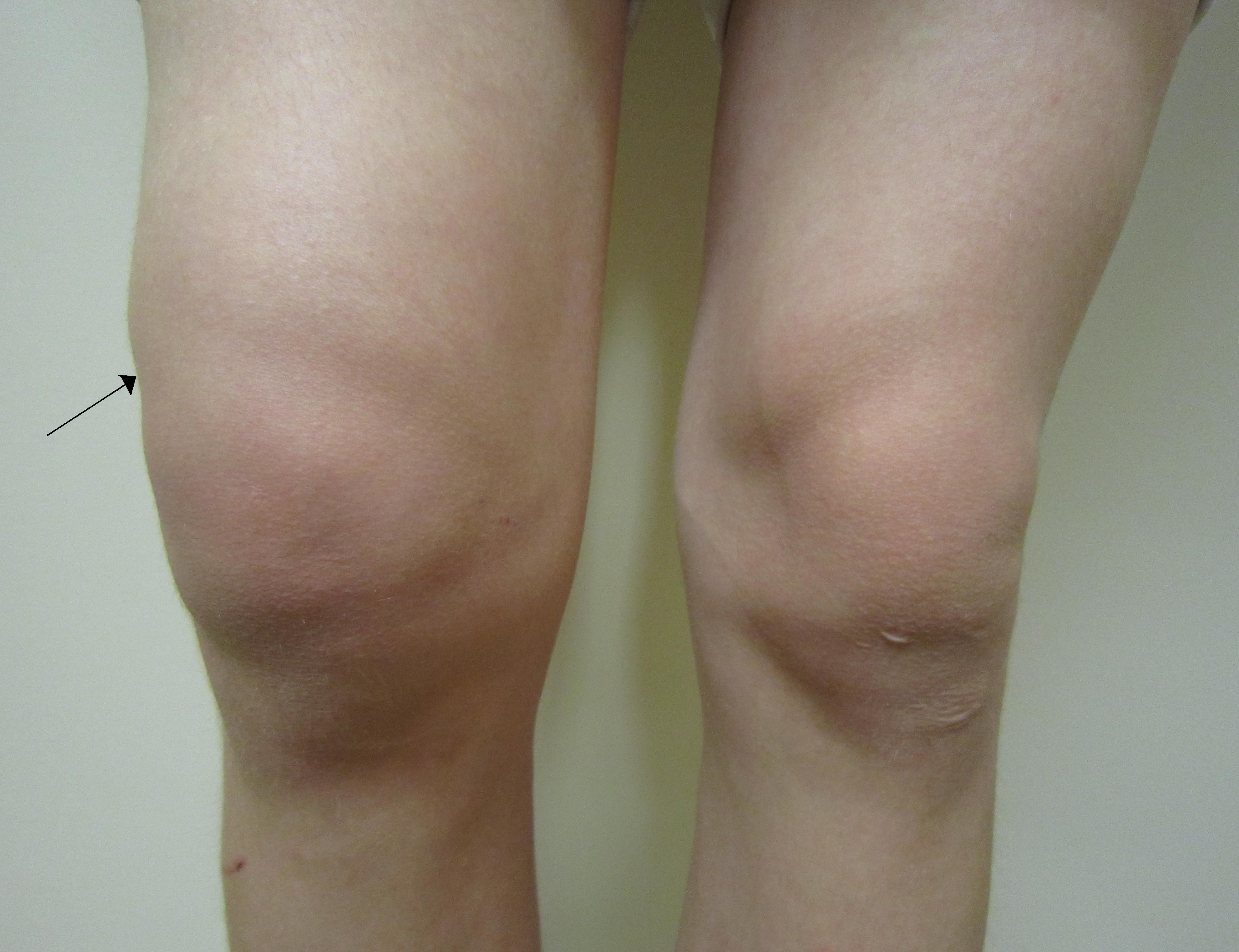fluid în cavitatea articulară a genunchiului)
