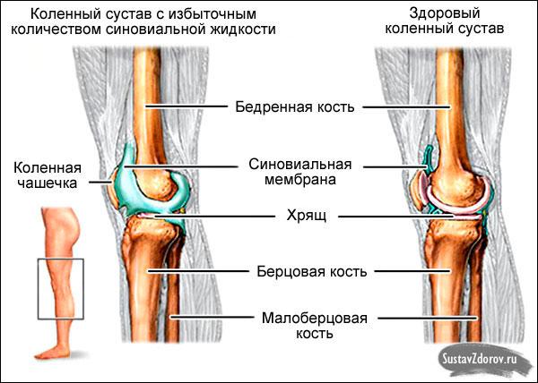Лечение левого коленного сустава - Artroza acută a cotului