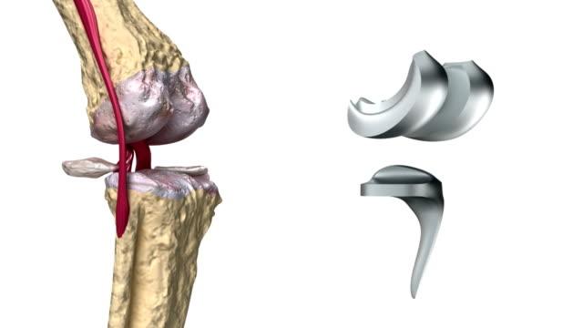 balsam articular ligamentar