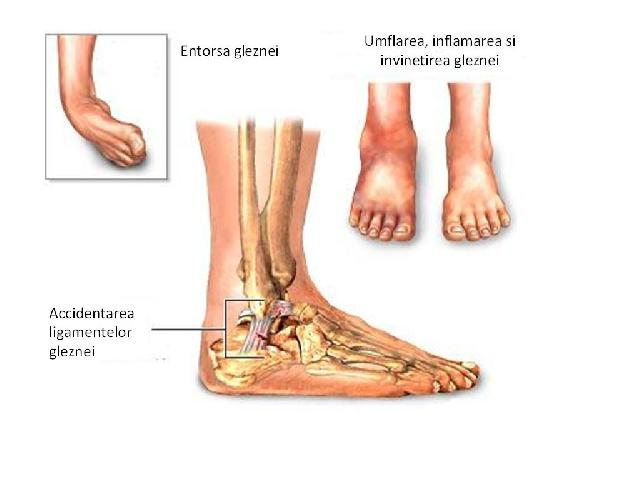 durere și umflarea articulației gleznei)