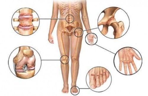boala simultană a mai multor articulații