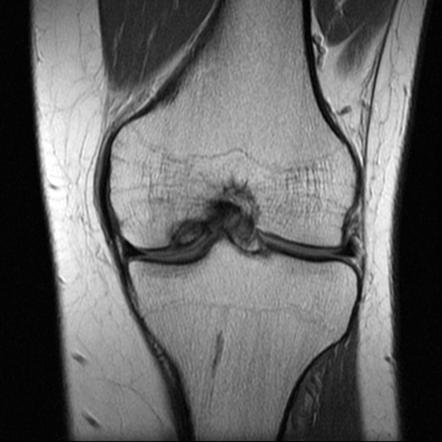 la articulațiile opistorhiasice doare