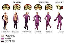 articulațiile suferă de siofor)