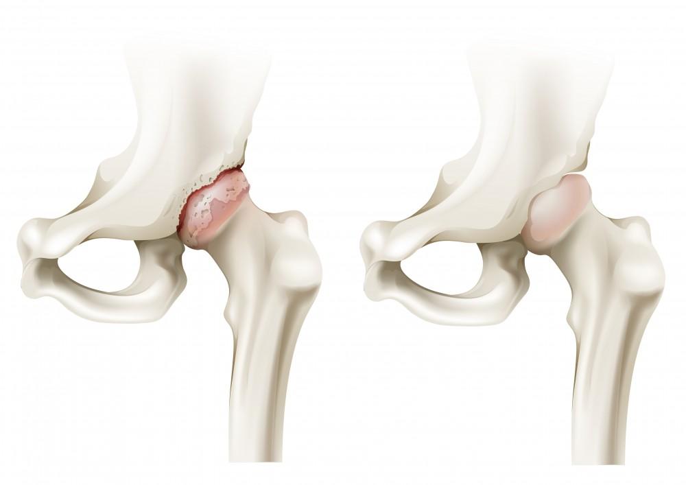 Antecedente medicale false ale articulațiilor șoldului. Proceduri comune de artroză