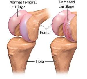 refacerea țesutului cartilaginos al articulației genunchiului