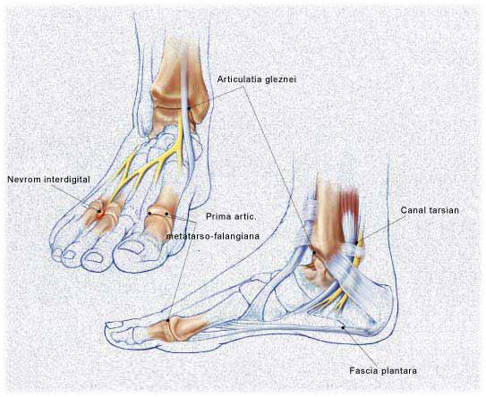artrita sinovită a articulației gleznei)