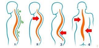 durere a articulației genunchiului poate dureri articulare arnica