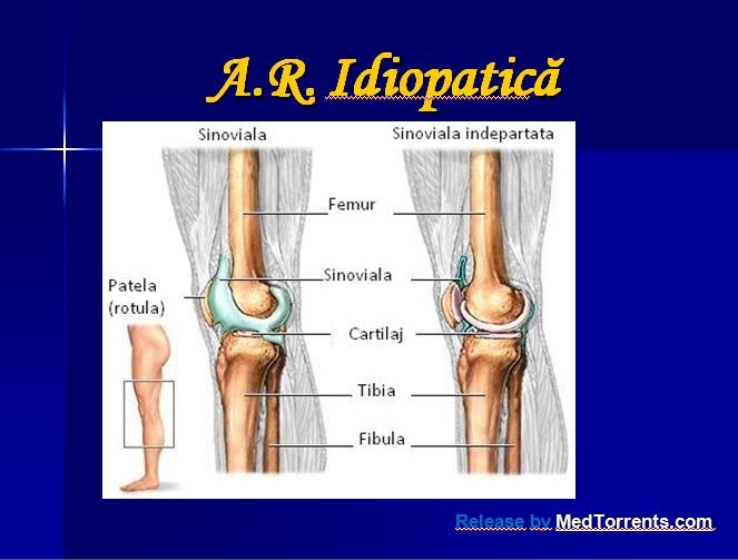 articulațiile de excludere a artritei reumatoide)