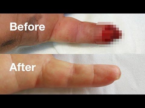 articulațiile degetelor doare la o vârstă fragedă