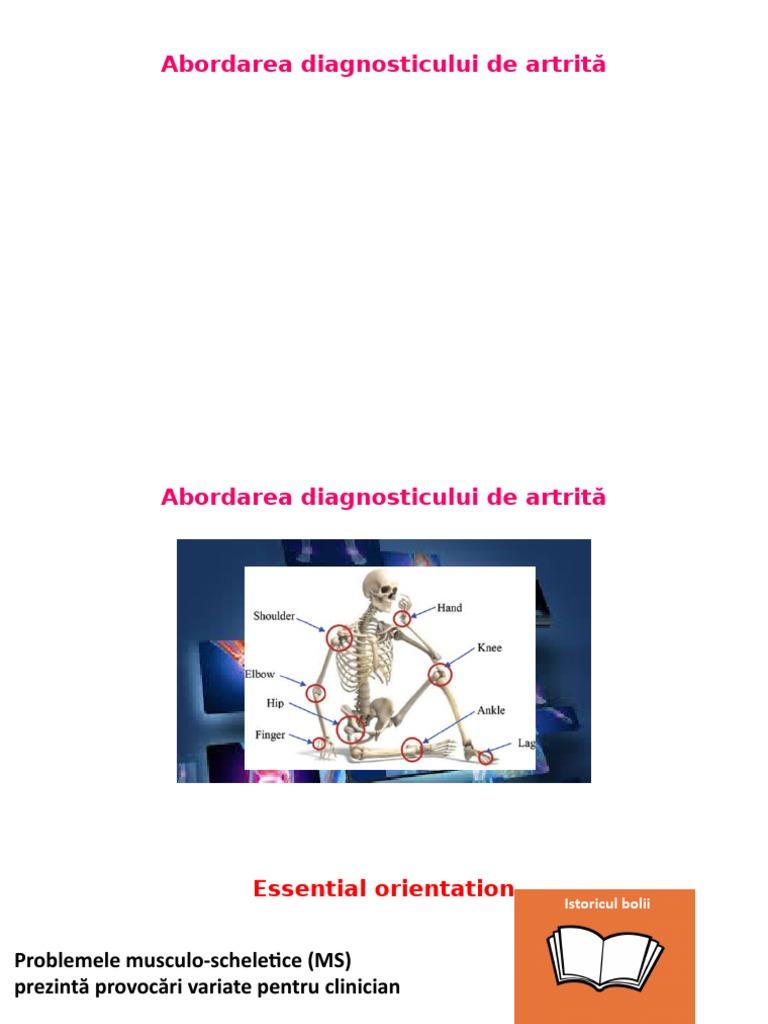 lista de pilule de artrită articulară