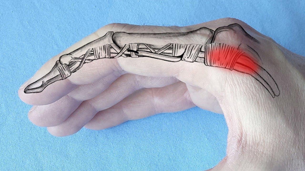 de ce doare articulația degetului mijlociu pe braț