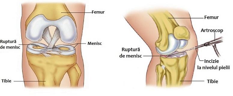 blocarea genunchiului în cazul leziunilor meniscului