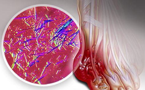 boli inflamatorii ale țesuturilor moi și articulațiilor artroza în stadiu a articulației șoldului