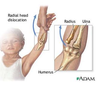 articulație la nivelul cotului și încheietura mâinii