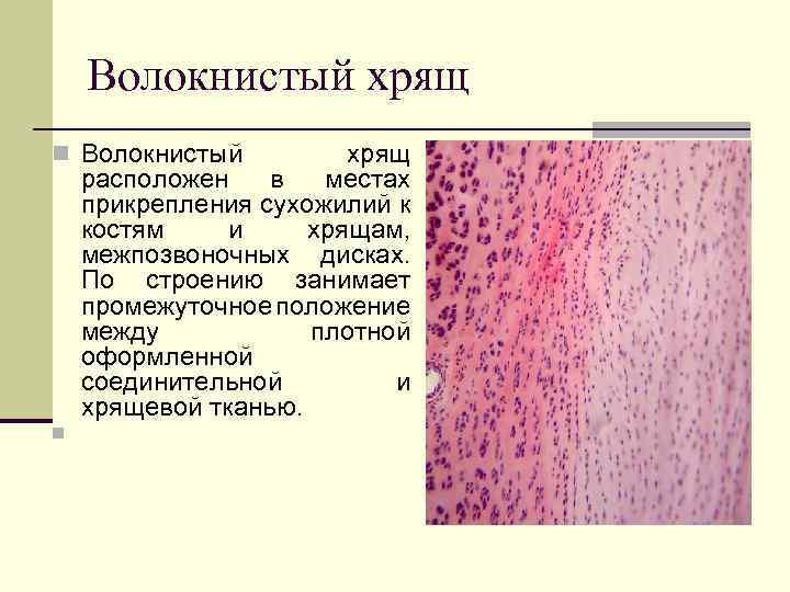 Boli ale sistemului musculo-scheletic și cauzele țesutului conjunctiv