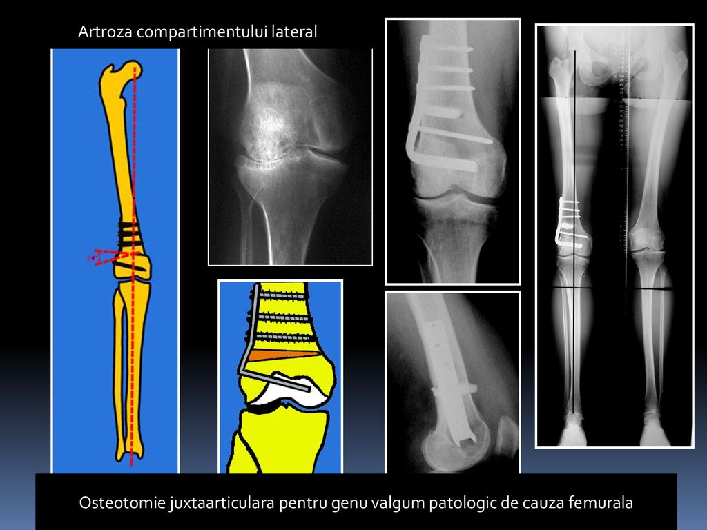 tratamentul artrozei deformante post-traumatice a genunchiului