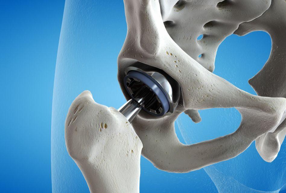 realizarea unei articulații de șold decât tratarea