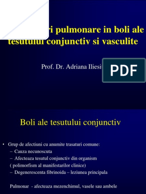boala sistemică a țesutului conjunctiv cu leziuni pulmonare