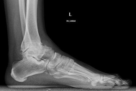 artroso artrita tratamentul gleznei)