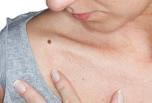 Pete pe piele: Tipuri, cauze si remedii | centru-respiro.ro