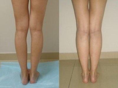 tratamentul genunchiului hallux valgus cu durere în articulațiile genunchiului și picioarele plate