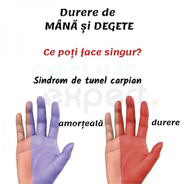 DURERE de MÂNĂ și DEGETE: sindrom de tunel carpian