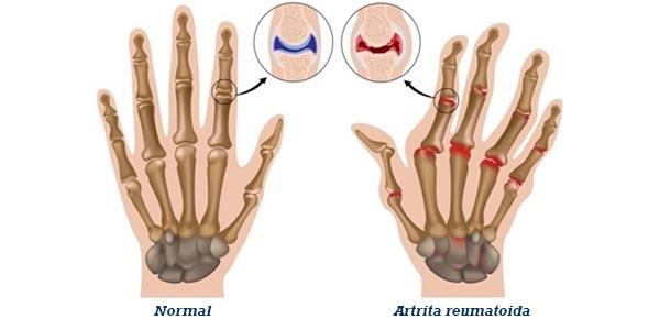 modificări articulare ale artritei