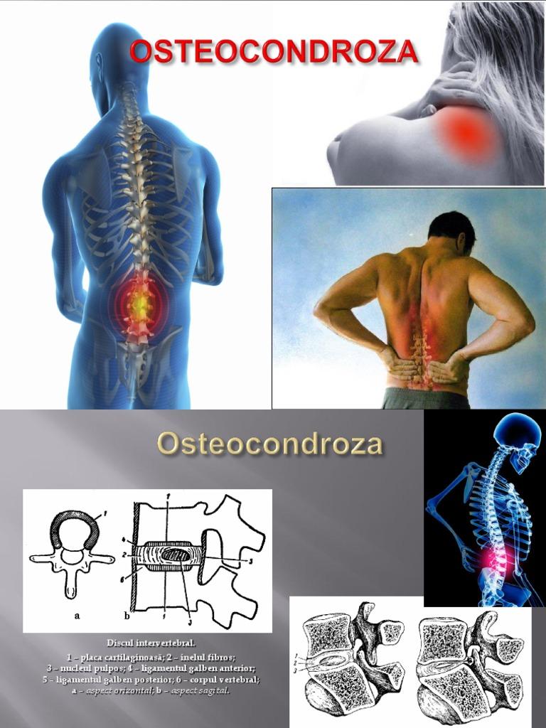 preparate hormonale pentru osteochondroză