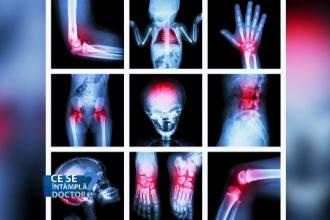 Amplipse pentru artroza genunchiului inflamația articulației și a ligamentelor