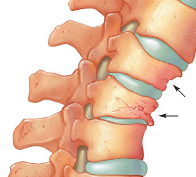 articulație sub coloana vertebrală doare