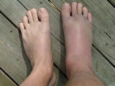 articulații false ale piciorului inferior după tratamentul fracturii)