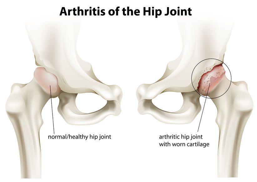 Artroza deformantă a articulației șoldului de gradul I)
