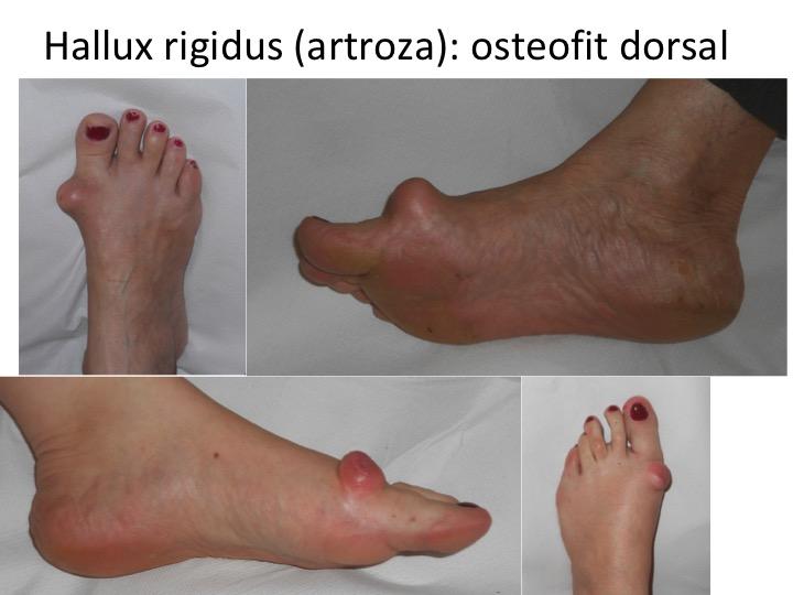 Deformatoare artroza metatarsiene
