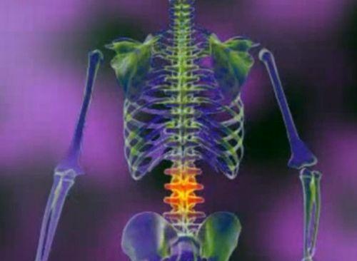 Spondilartroza artroza intervertebrala