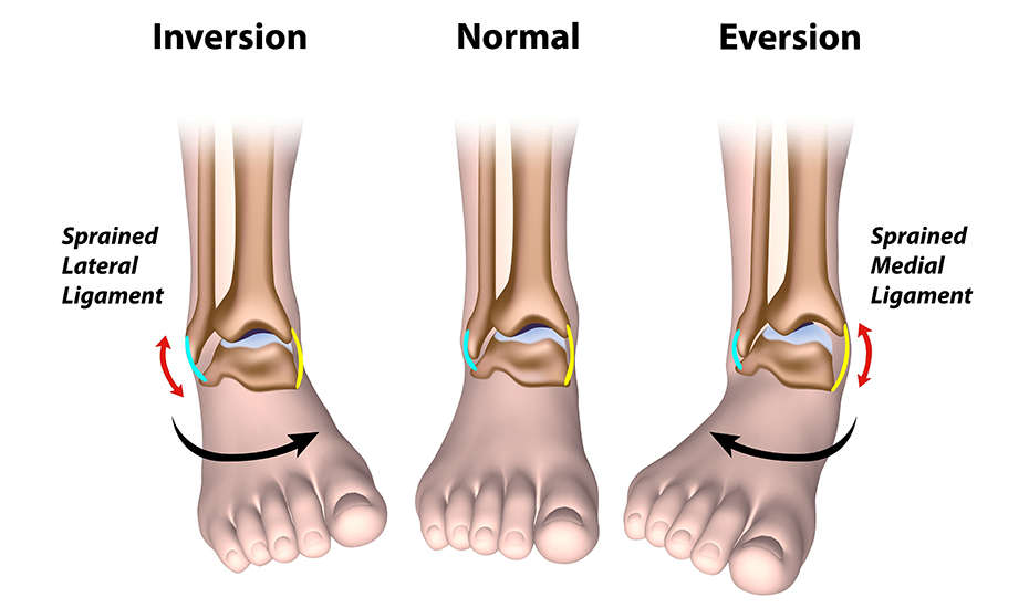 tratamentul chirurgical al artrozei piciorului