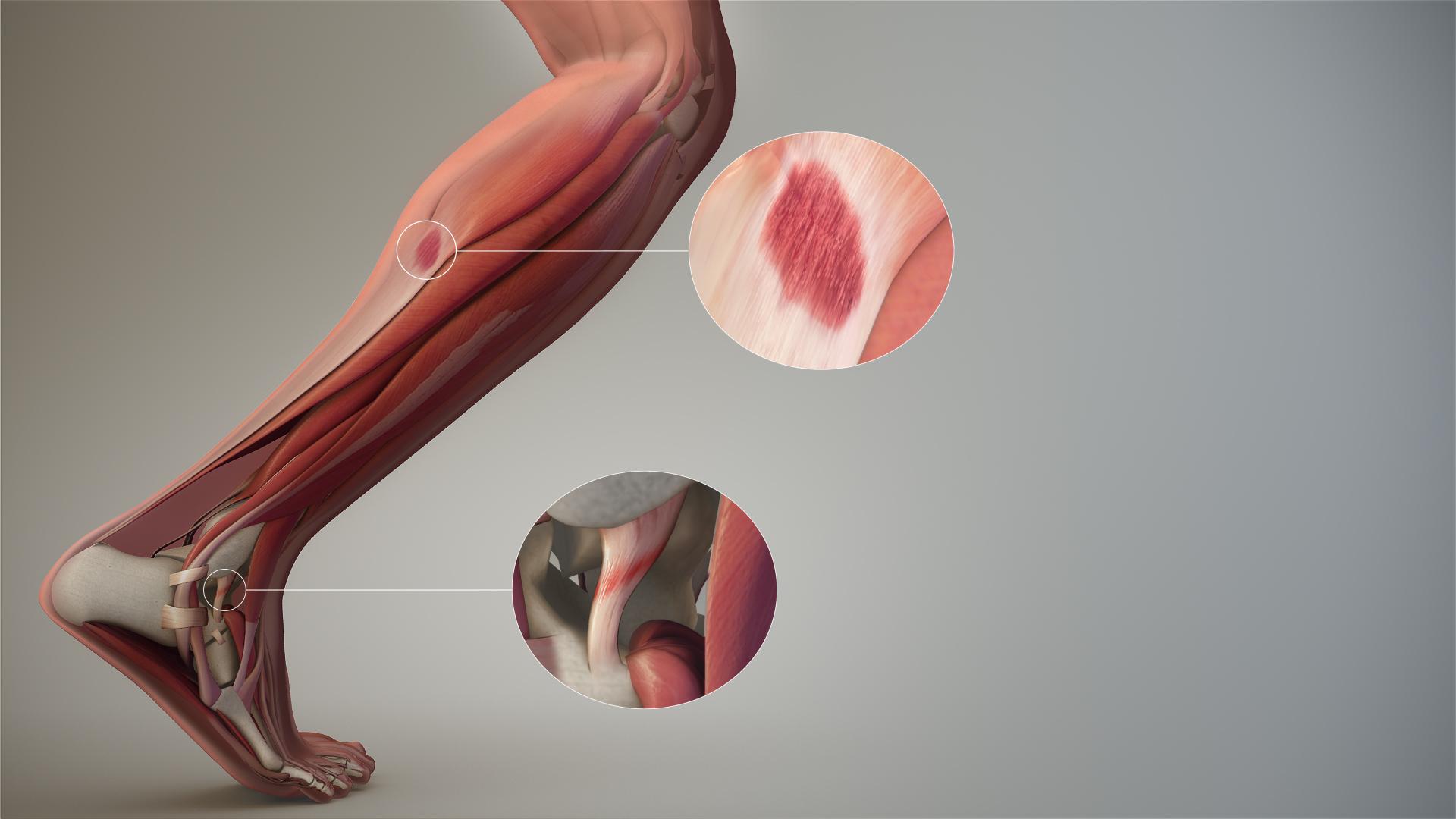 remedii eficiente pentru durerea articulațiilor genunchiului