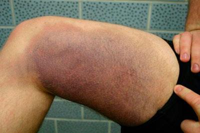artroza articulațiilor mici ale picioarelor