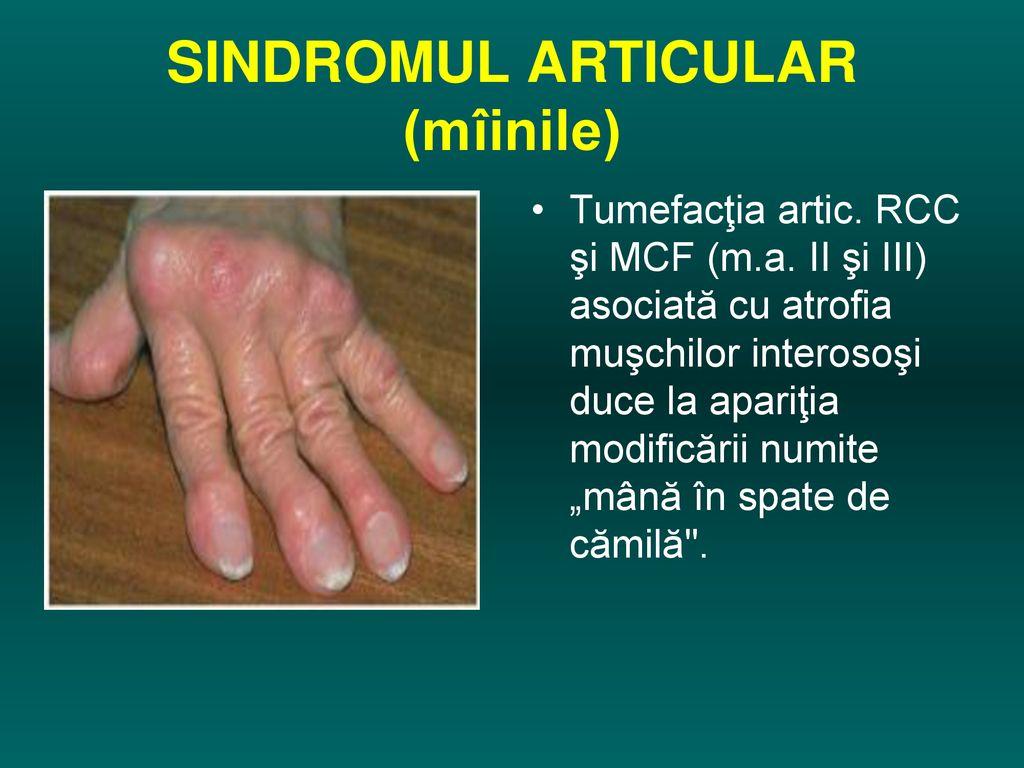 boală articulară nespecificată