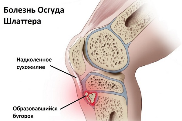 boala țesuturilor moi ale genunchiului)