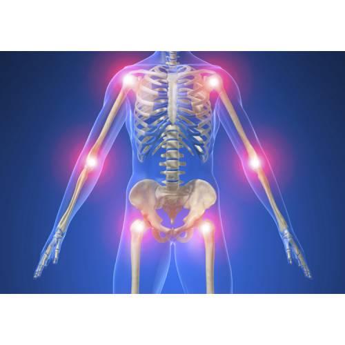 boli osoase și articulare Preț de ce durerea articulațiilor în 30 de ani