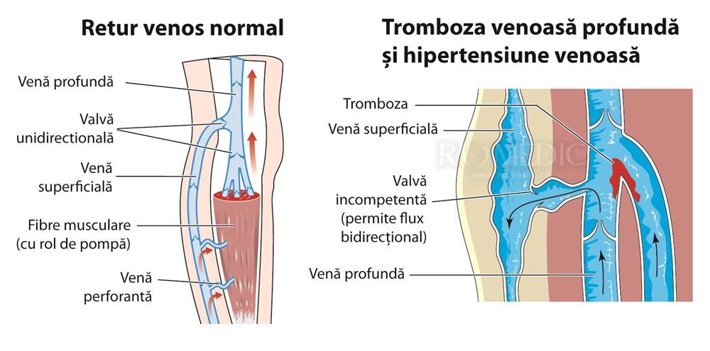 Tromboză sau artrită a articulațiilor unui picior, Senzație de arsură în genunchi și glezne, alte