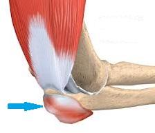 Cauzele frecvente ale durerii la nivelul braţelor | Panadol