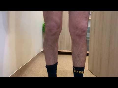 ce medicamente să folosească pentru artrita articulației genunchiului tratamentul artrozei genunchiului de gradul II cu alflutop