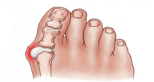 comprimate pentru tratamentul articulațiilor degetelor de la picioare