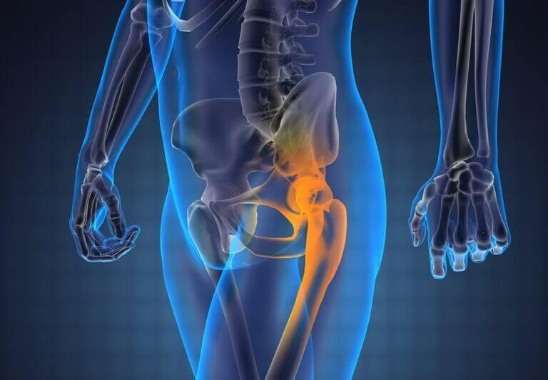 coxartroza articulațiilor șoldului antecedente medicale articulația în călcărie doare ce să facă
