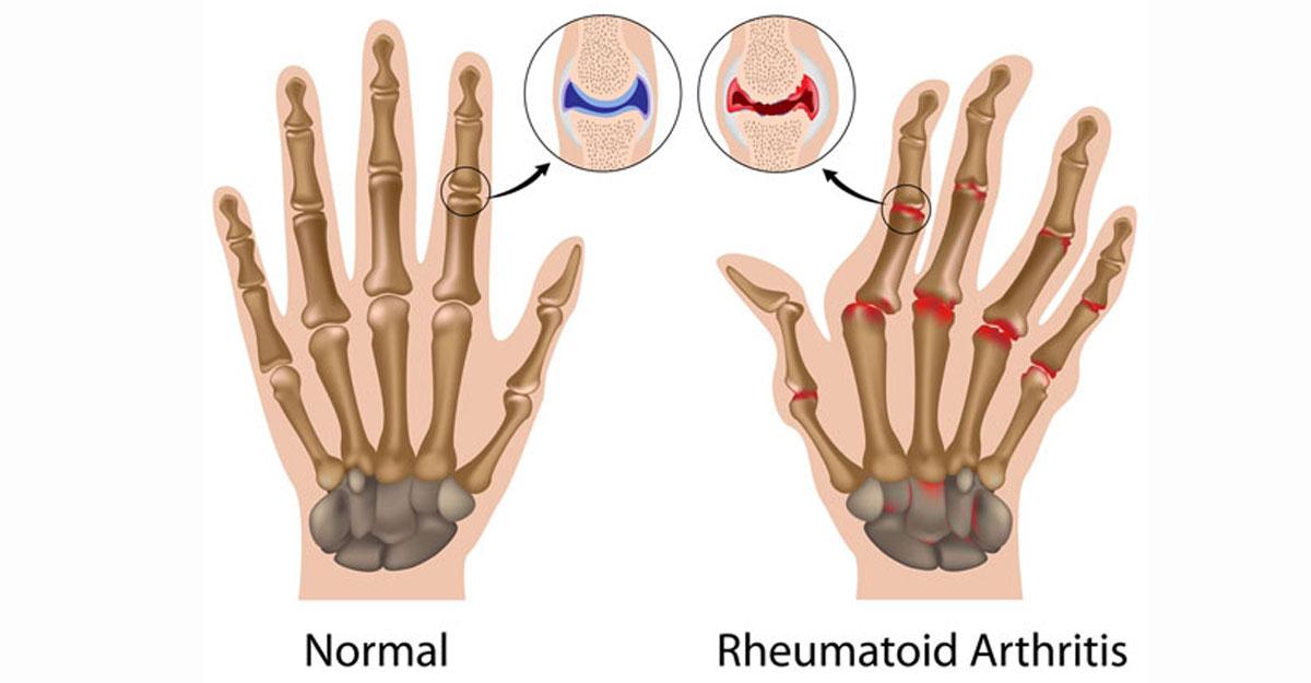 O simptome de inflamație articulară Tipuri