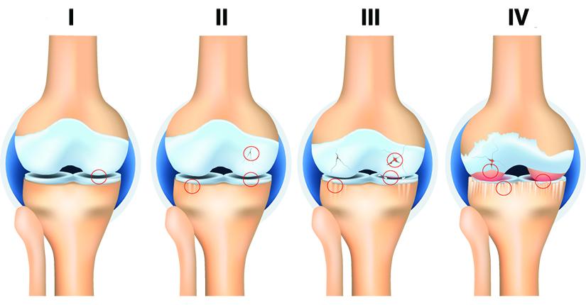 artroza traumatică a genunchiului)