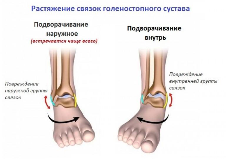 daune la asigurarea ligamentelor gleznei