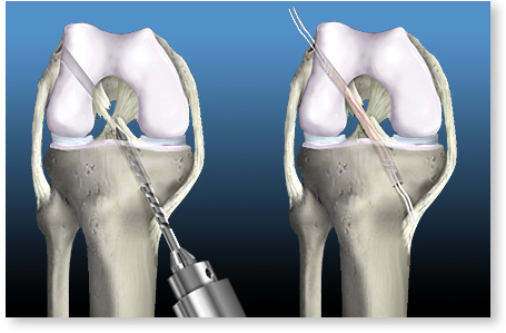 ligamentul cruciat anterior al articulației genunchiului)