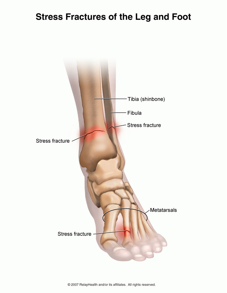 durere la gleznă în timpul alergării)